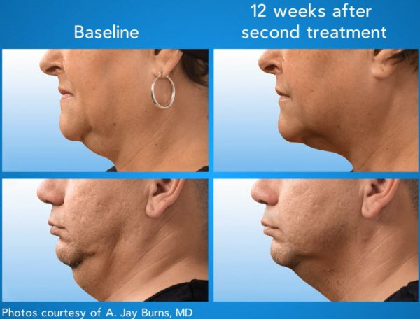 coolsculpting double chin lax reduction
